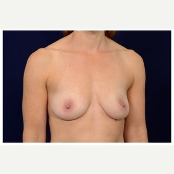 35-44 year old woman treated with Breast Augmentation before 1559300