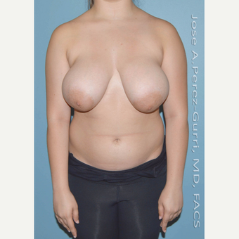 18-24 year old woman treated with Breast Reduction before 3245096