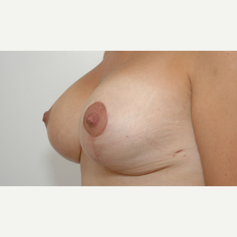 Breast Lift after 3108929