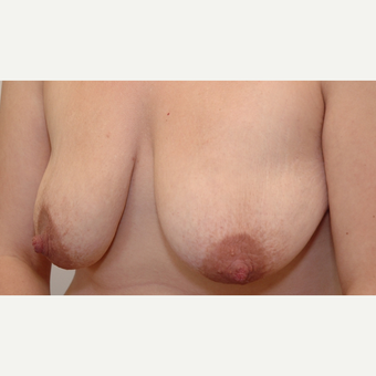 Breast Lift before 3108929