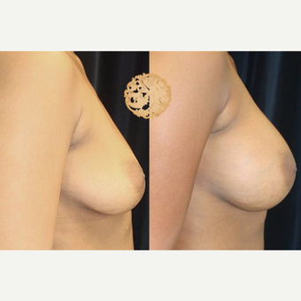 35-44 year old woman treated with Breast Augmentation after 3176571