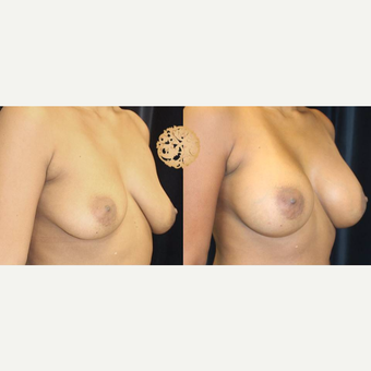 35-44 year old woman treated with Breast Augmentation before 3176571