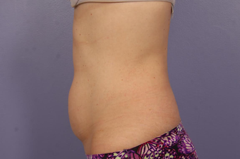 CoolSculpting before 1599499
