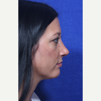 25-34 year old woman treated with Rhinoplasty after 3109175