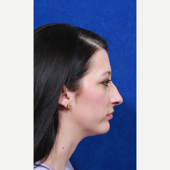 25-34 year old woman treated with Rhinoplasty before 3109175