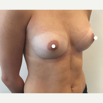 25-34 year old woman treated with Breast Augmentation after 3522469