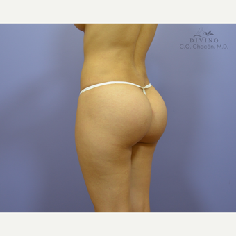 18-24 year old woman treated with Butt Augmentation after 3421181