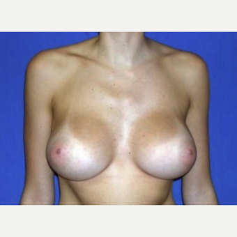 18-24 year old woman treated with Breast Augmentation after 3219928