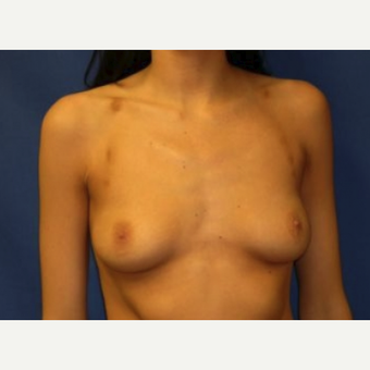 18-24 year old woman treated with Breast Augmentation before 3219928