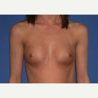 25-34 year old woman treated with Breast Augmentation before 3220066