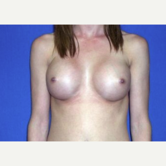 25-34 year old woman treated with Breast Augmentation after 3220066