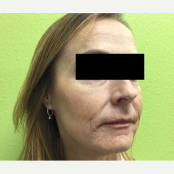 45-54 year old woman treated with Infini RF before 3816759