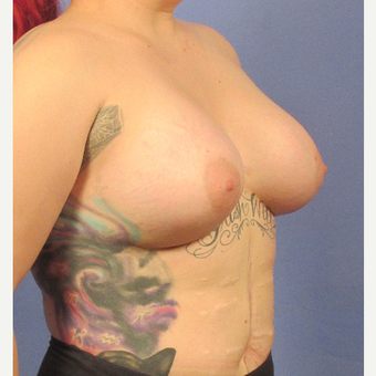 25-34 year old woman treated with Breast Augmentation after 3106294