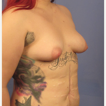 25-34 year old woman treated with Breast Augmentation before 3106294