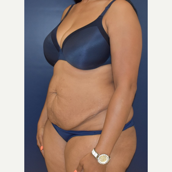 25-34 year old woman treated with Liposuction before 3844738