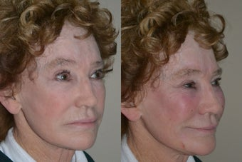 71 year old non-surgical treatment for facial volume deflation. before 1270751