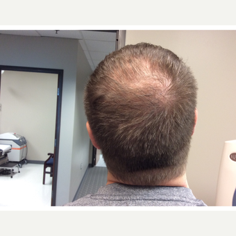 35-44 year old man treated with PRP for Hair Loss before 3059165