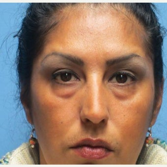35-44 year old woman treated with Eye Bags Treatment before 1946365