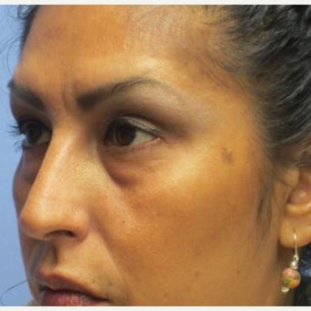35-44 year old woman treated with Eye Bags Treatment 1946365