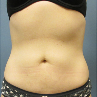 35-44 year old woman treated with CoolSculpting after 3764012
