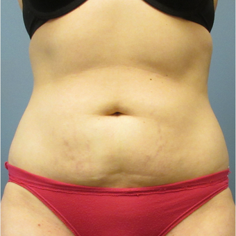 35-44 year old woman treated with CoolSculpting before 3764012