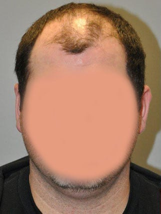 Hair Restoration / Hair Replacement - 30 year old male, 9 months post-op