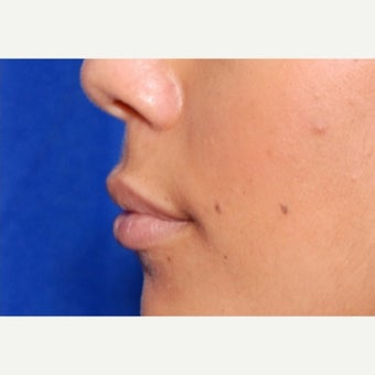 25-34 year old woman treated with Juvederm to the lips 1965974