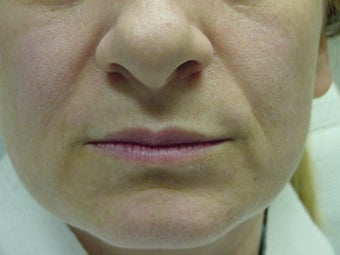 Juvederm before and after before 109754