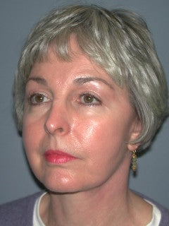 Face Lift, Blepharoplasty, Neck lift on 66-year-old Woman 1235589