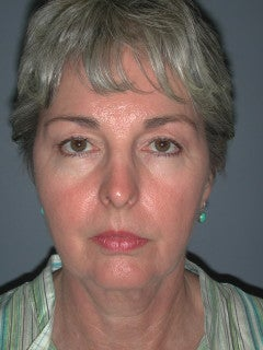 Face Lift, Blepharoplasty, Neck lift on 66-year-old Woman before 1235589