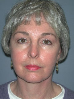 Face Lift, Blepharoplasty, Neck lift on 66-year-old Woman after 1235589