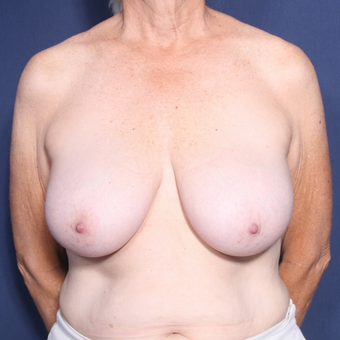65-74 year old woman treated with Breast Reduction (view 1 of 2) before 3129218