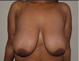 35-44 year old woman treated with Breast Reduction before 3482716