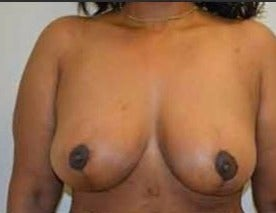 35-44 year old woman treated with Breast Reduction after 3482716