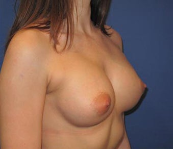 Bilateral Breast Augmentation-Patient has type I Tuberous Breast Deformity - Pre- & 9 Months Post-op 3473937