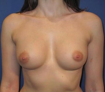 Bilateral Breast Augmentation-Patient has type I Tuberous Breast Deformity - Pre- & 9 Months Post-op after 3473937