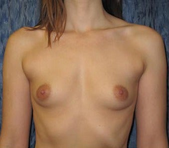 Bilateral Breast Augmentation-Patient has type I Tuberous Breast Deformity - Pre- & 9 Months Post-op before 3473937