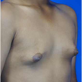 18-24 year old man treated with Male Breast Reduction before 3542901