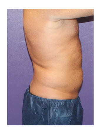 Male One treatment to abdomen Coolsculpting  after 1213602