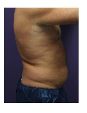 Male One treatment to abdomen Coolsculpting  before 1213602