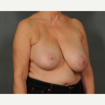 45-54 year old woman treated with Breast Reduction before 2975611