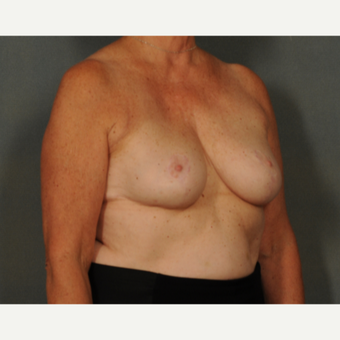 45-54 year old woman treated with Breast Reduction after 2975611