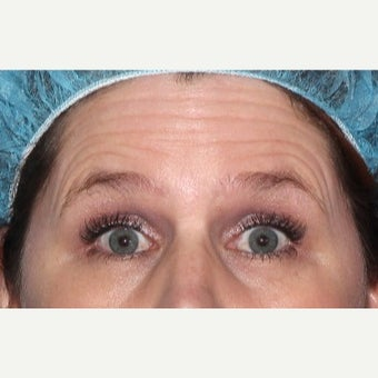 25-34 year old woman treated with Botox