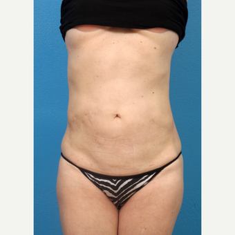 35-44 year old woman treated with Liposuction after 3227318