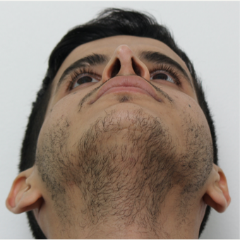 25-34 year old man treated with Revision Rhinoplasty after 3583845