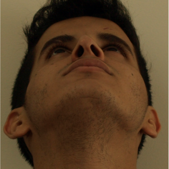 25-34 year old man treated with Revision Rhinoplasty before 3583845
