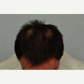 FUE Hair Transplant - 2,500 grafts and PRP after 1649915