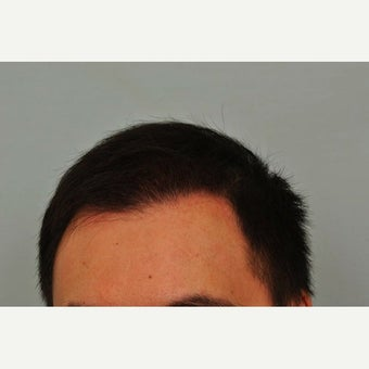 FUE Hair Transplant - 2,500 grafts and PRP 1649915