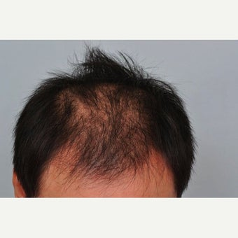 FUE Hair Transplant - 2,500 grafts and PRP before 1649915