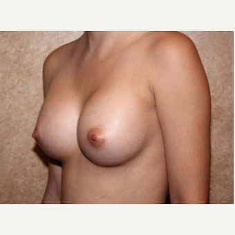 Saline Implants - Breast Augmentation after 3324961